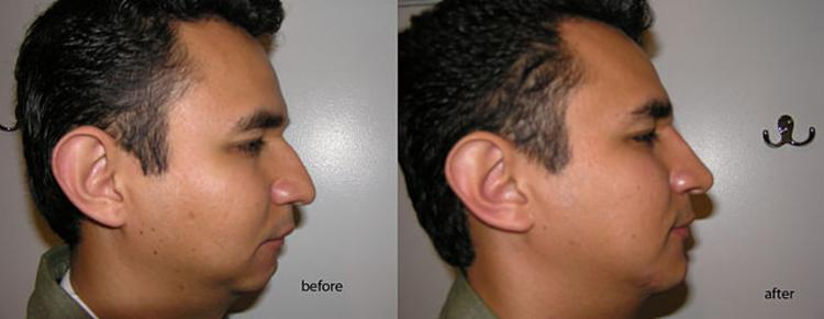 best rhinoplasty specialist Inland Empire