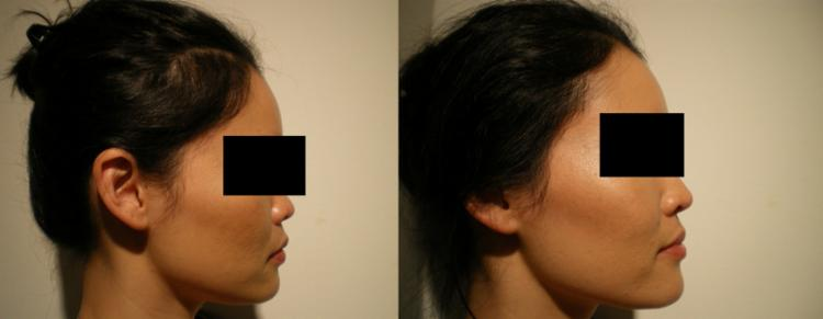 Inland Empire best rhinoplasty specialist surgeons